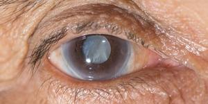 Показания к назначению глазных капель Тауфон
