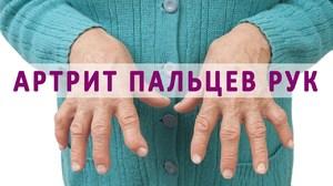 Заболевания способствующие полиартриту рук