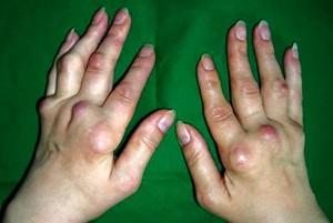 Как проявляется полиартрит рук
