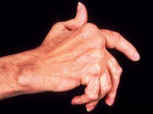 Мази для лечения полиартрита рук