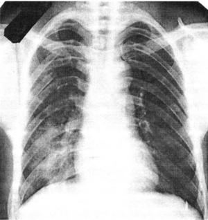 Закрытая травма груди: переломы задних отделов IV-VII рёбер справа