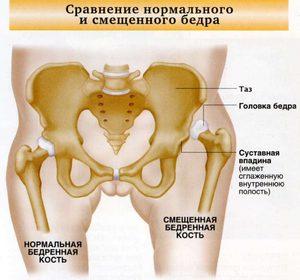 Изображение - Вывих тазобедренного сустава причины vyvih_tazobedrennogo_sustava