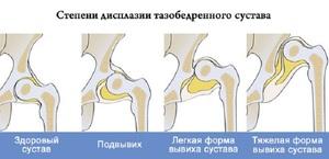Изображение - Вывих тазобедренного сустава причины lechenie_podvyviha