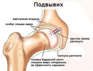 Изображение - Вывих тазобедренного сустава причины podvyvih_tazobedrennogo