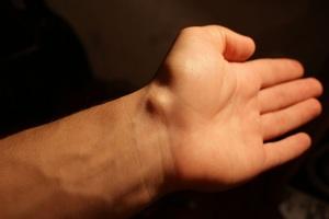 Изображение - Сонограмма лучезапястного сустава после удаления гигромы gigroma_luchezapyastnogo