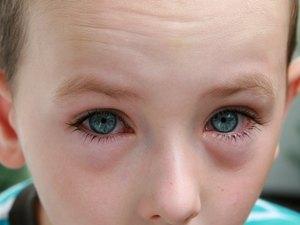 Появление аллергии на глазах