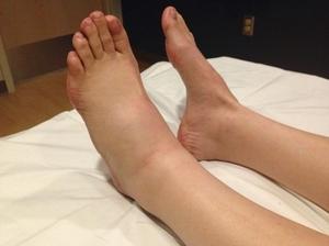 Как помочь при ушибе ноги