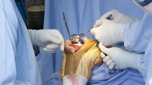 Восстановление мениска при помощи операции